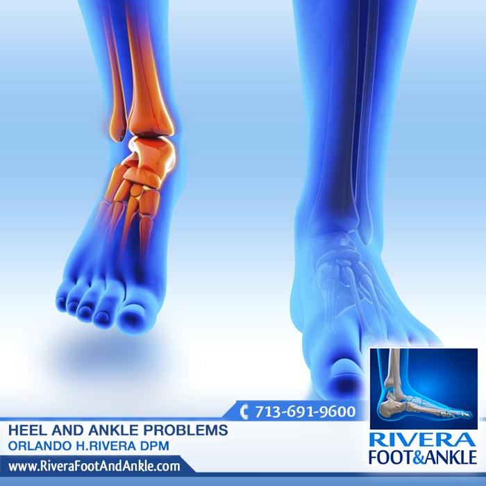 180916 Foot and Ankle Surgery in Houston