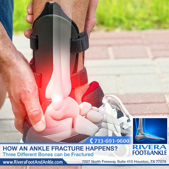 012317 ankle fracture doctor in houston