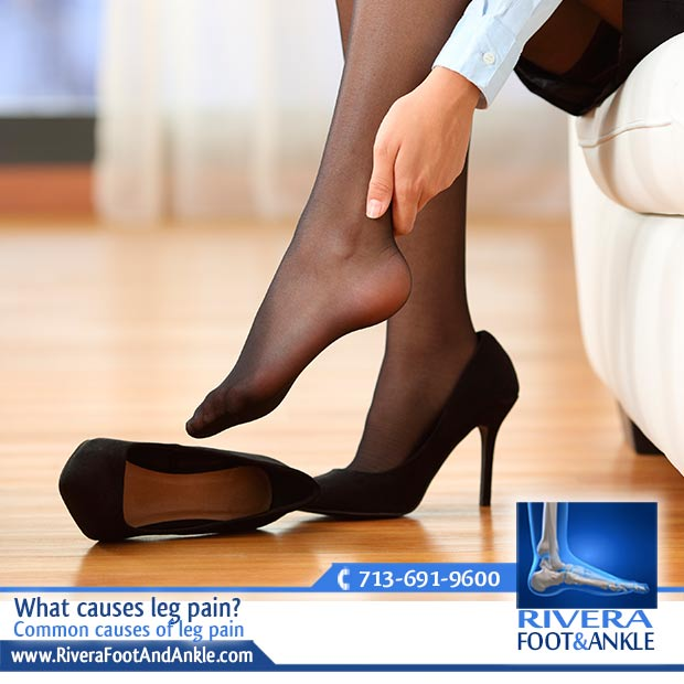 24 Common causes of leg pain