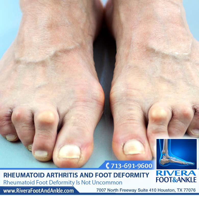 210118 Rheumatoid Foot Deformity Is Not Uncommon