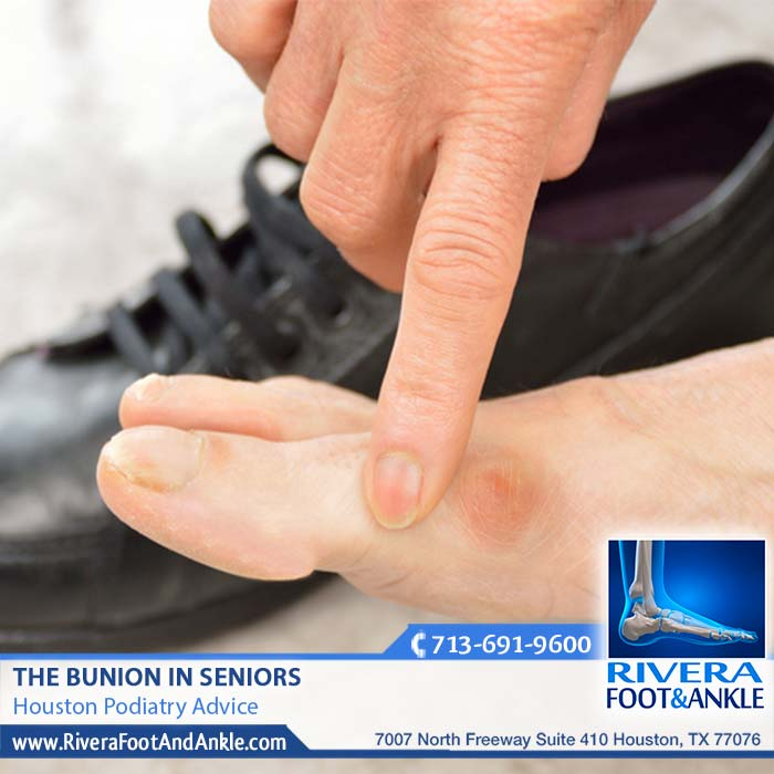 020318 Houston Podiatry Bunions