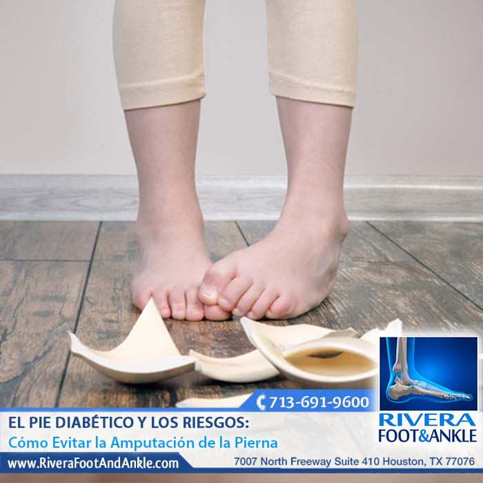 El Pie Diabético y Los Riesgos: - Rivera Foot and Ankle