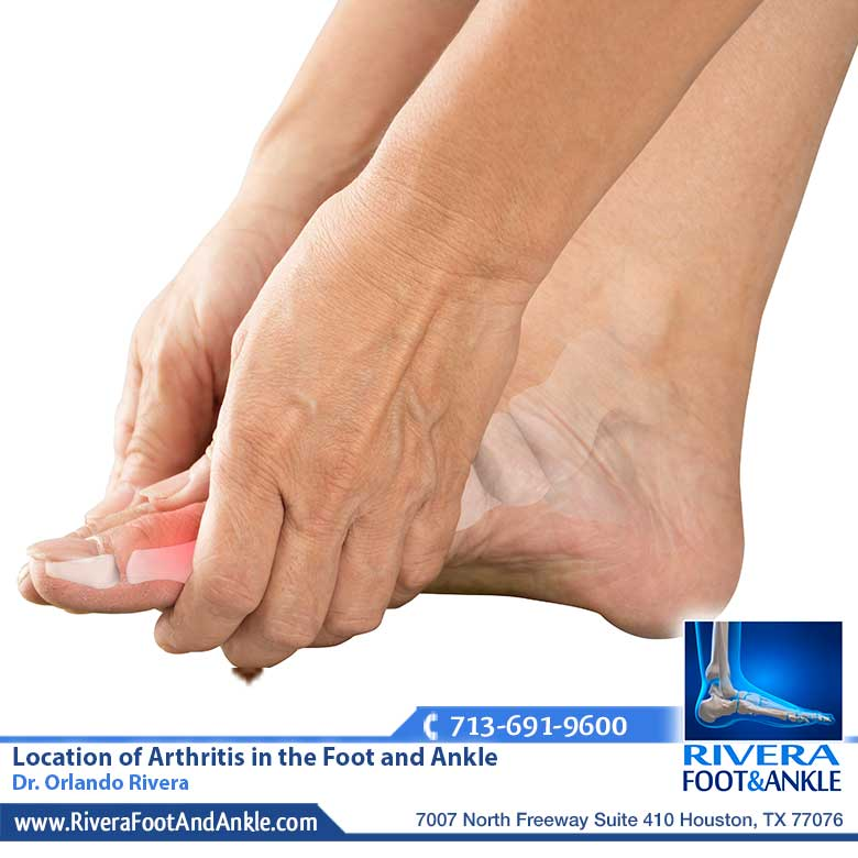 22 Location of Arthritis in the Foot and Ankle