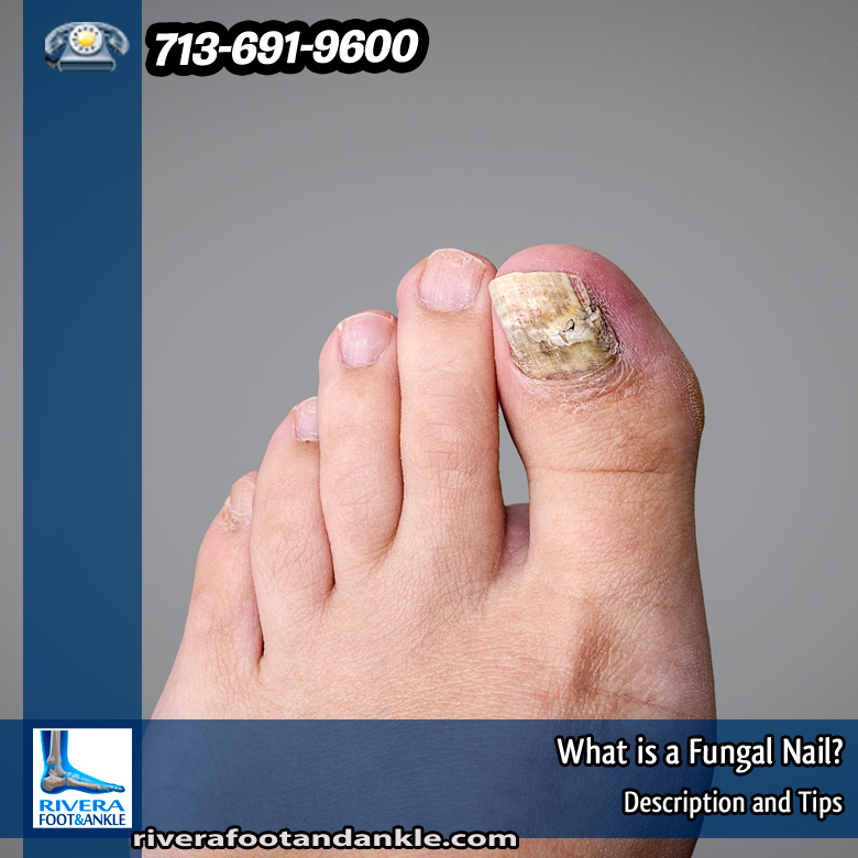 13-what-is-a-fungal-nail