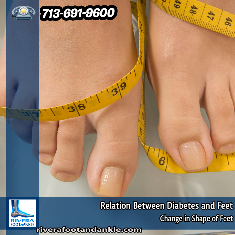 11-relation-between-diabetes-and-feet